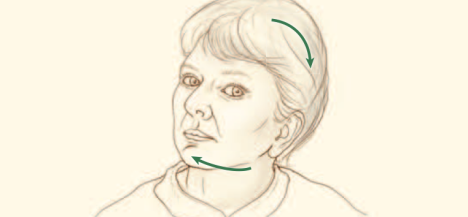 Distonia Cervical